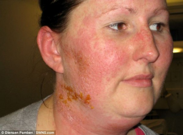 iPhone cover causes allergic reaction covering woman's face and neck