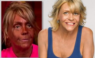 Like a Whole New Person:  What a Difference a Month Away from the Tanning Bed Makes