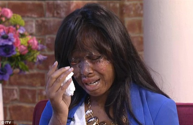 'I'm not angry with my attacker. I just want to know why they did it': Victoria's Secret girl, 20, says acid attack that left her partially blind and scarred for life has made her stronger